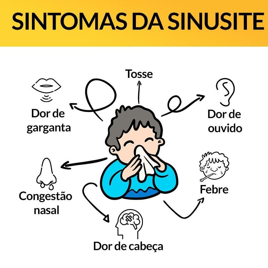 Resultado de imagem para imagens sinusite